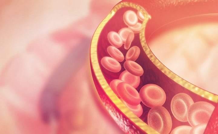 I cristalli di colesterolo causano attacchi cardiaci