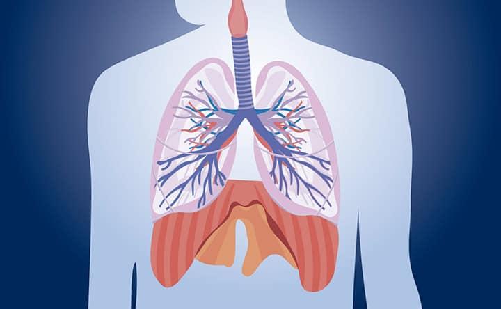 Statine associate al miglioramento di una malattia polmonare rara