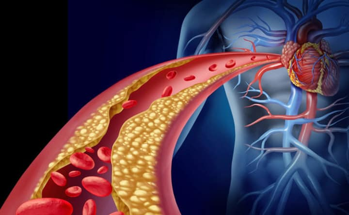 Invertire i primi segni di aterosclerosi