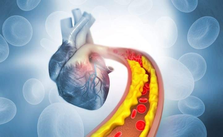 Gli europei hanno il colesterolo più basso degli asiatici: ecco il motivo